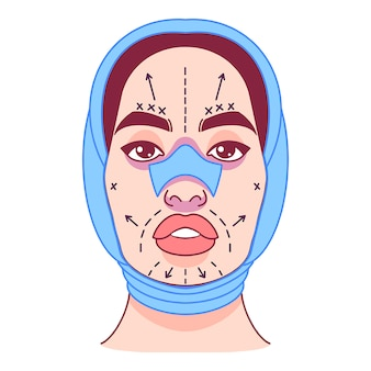 Chirurgia plastica, cambio di aspetto, linea di incisioni sul volto femminile. illustrazione vettoriale