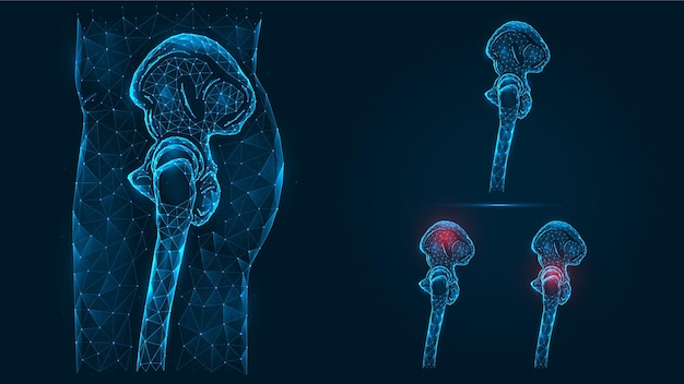 Illustrazione poligonale della vista laterale umana pelvica e ossa dell'anca. malattia, dolore e infiammazione del bacino e dell'articolazione dell'anca.