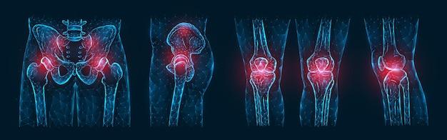 Illustrazione vettoriale poligonale di dolore o infiammazione delle ossa del bacino, articolazione dell'anca e articolazioni del ginocchio isolate