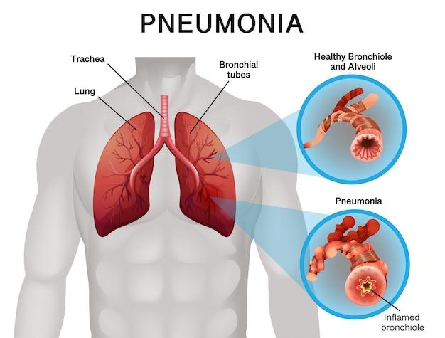 Design del poster per polmonite con polmoni umani