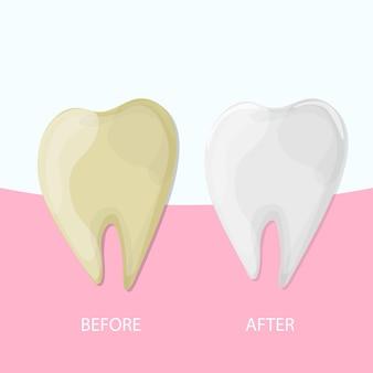 Sbiancamento dei denti professionale, dente sano e giallo, illustrazione vettoriale. illustrazione medica - cure odontoiatriche