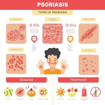Infografica sulla psoriasi. immagini mediche di vettore di diagnosi di psoriasi di infezione della pelle umana. cura della pelle, dermatite umana e illustrazione dell'infiammazione della malattia