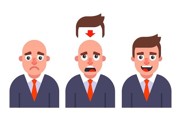 Metti una parrucca su un uomo. caduta precoce dei capelli. illustrazione vettoriale piatto.