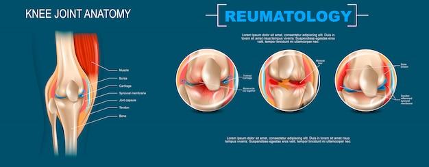 Anatomia dell'articolazione del ginocchio dell'illustrazione realistica della bandiera