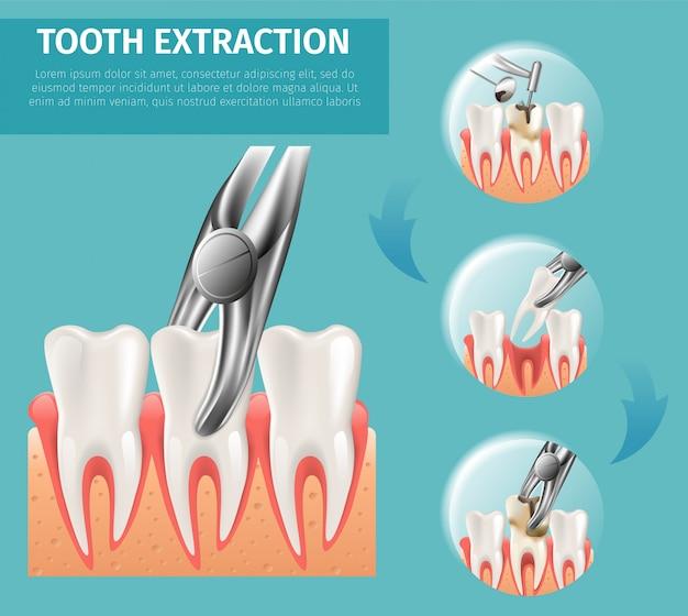 Vettore realistico 3d dell'estrazione del dente dell'illustrazione