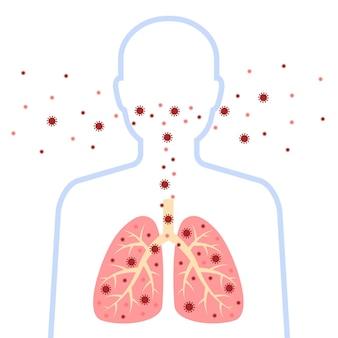 Sagoma di uomo infetto del sistema respiratorio design del virus corona con polmoni e virus della malattia