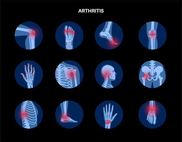 Artrite reumatoide, dolore, concetto di malattia ossea.