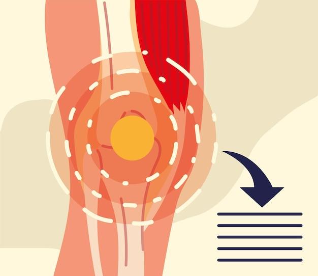 Illustrazione del ginocchio di reumatologia
