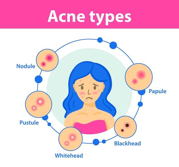 Ragazza triste con l'acne sul viso tipi di acne