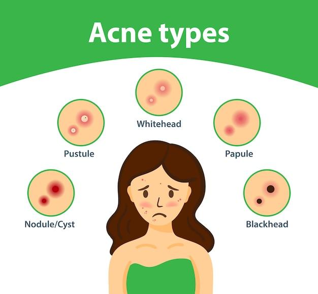 Ragazza triste con l'acne sul viso tipi di acne Vettore Premium