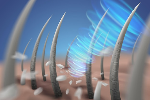 Le immagini di rimozione della forfora del cuoio capelluto puliscono il cuoio capelluto