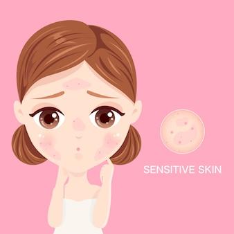 Viso della pelle sensibile