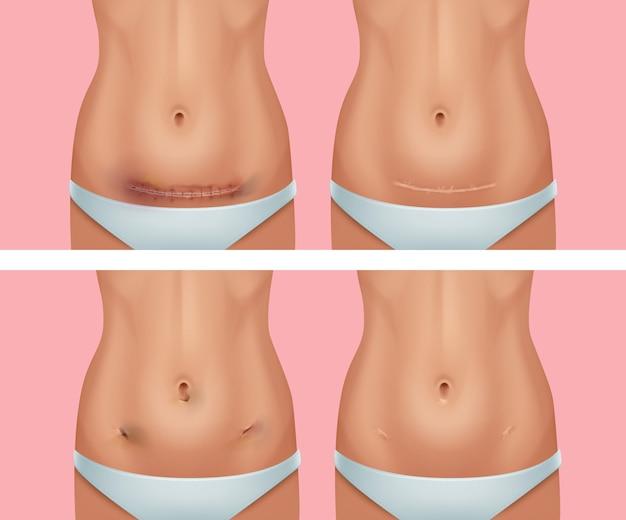 Serie di cicatrici fresche e cicatrizzate sul corpo dopo la ferita all'addome