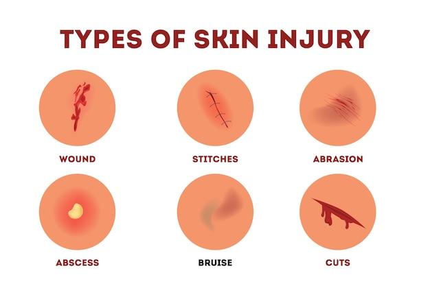 Set di illustrazione di lesioni fisiche. collezione in stile cartone animato con diversi tipi di lesioni cutanee nel corpo umano. illustrazione isolata di dolorosi danni alla pelle