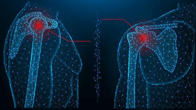 Illustrazione vettoriale poligonale blu di dolore alle articolazioni della spalla