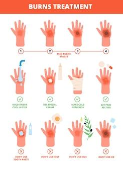 Bruciore alla pelle. trattamento delle mani bruciate, protezione dalle ustioni. pronto soccorso e trattamento, fasi della combustione. illustrazione di trattamento medico piatto. grado di bruciore bruciore della pelle della mano, danni e cure mediche