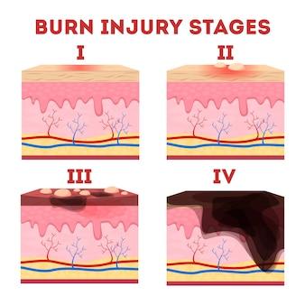 Fasi della lesione da ustione cutanea. anatomia della pelle. Vettore Premium