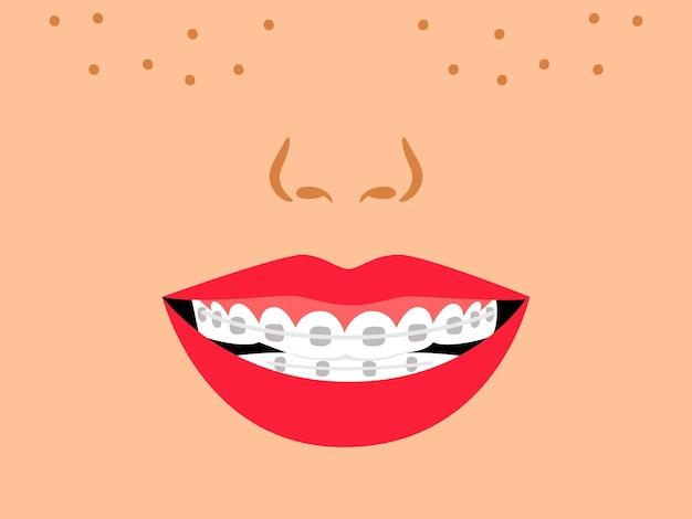 Sorridi con gli apparecchi dentali. morso medico corretto dei denti dei cartoni animati, illustrazione vettoriale del trattamento ortodontico per i denti in bocca mediante allineamento