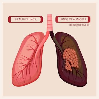 Polmoni del fumatore. fumo umano danni al cancro polmonare immagini mediche vettoriali infografica