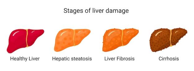 Fasi del danno epatico. condizioni del fegato di illustrazione vettoriale in stile piatto