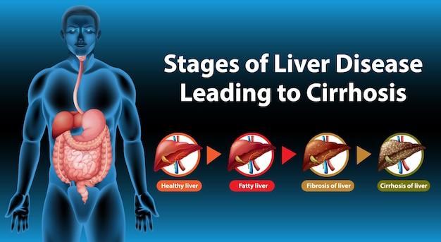 Fasi della malattia del fegato che portano alla cirrosi