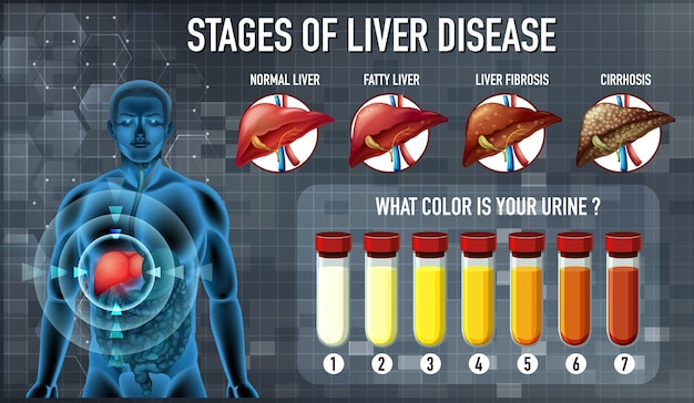Fasi della malattia del fegato