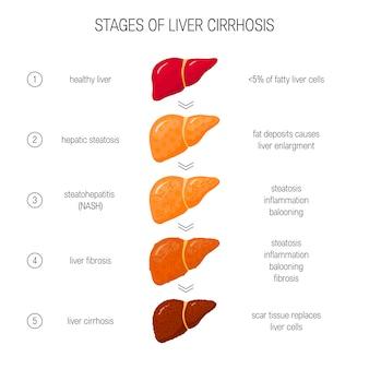 Fasi del concetto di insufficienza epatica. di fegato sano, grasso, nash, fibrotico e cirrotico in stile piatto