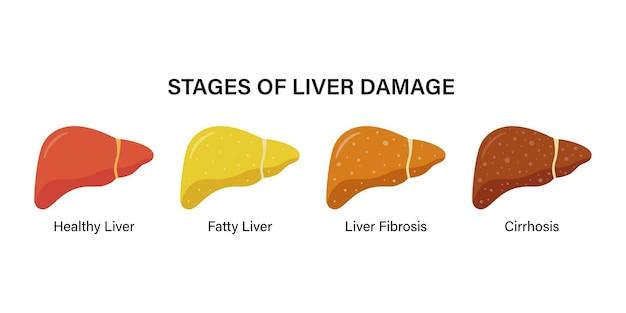 Fasi di danno epatico non alcolico. sano, grasso, fibrosi, cirrosi. malattia del fegato