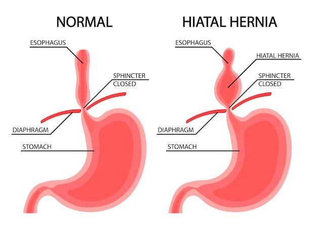 Malattia di stomaco. ernia diaframmatica. illustrazione vettoriale in stile cartone animato