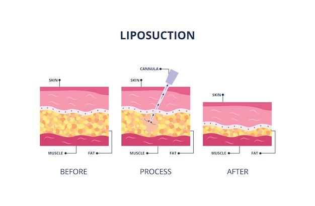 Procedura di liposuzione assistita da aspirazione - tubo cavo inserito nella pelle per aspirare il grasso, illustrazione su sfondo bianco. banner di grasso corporeo sotto la pelle.
