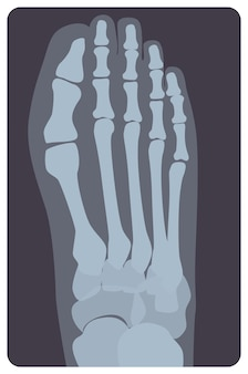 Radiografia superiore del piede o dell'arto destro umano. immagine a raggi x o immagine del monitor radiografico delle ossa e delle dita del metatarso, vista dall'alto. radiologia medica. illustrazione vettoriale monocromatica in stile piatto