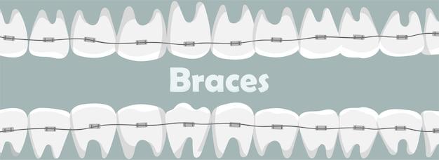 Denti tra parentesi graffe con l'iscrizione