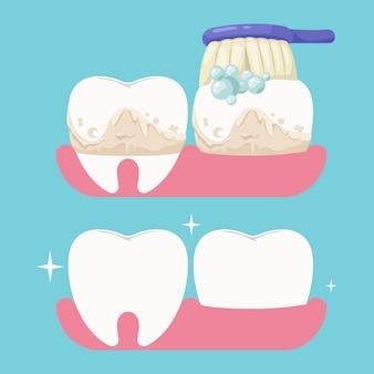 Pulizia dei denti in stile cartone animato.