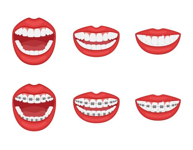 Denti in bocca con o senza parentesi graffe bocca aperta e chiusa con labbra rosse.