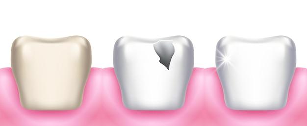 Problemi ai denti. carie dentaria, malattie dentali, carie da infezione e distruzione dello smalto.