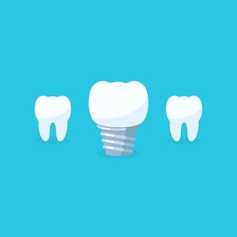 Denti con icone di impianto dentale su backgrund blu. simbolo del dente della clinica dell'ammaccatura. illustrazione vettoriale eps 10