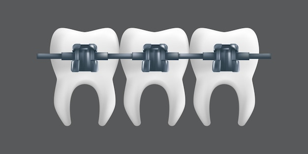 Denti con bretelle in metallo. concetto di trattamento ortodontico. illustrazione realistica di un modello in ceramica dentale isolato su uno sfondo grigio