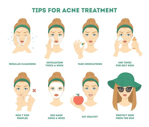 Suggerimenti per il trattamento dell'acne. come ottenere un'istruzione chiara per il viso.