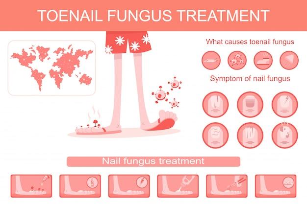 Infographics medico di trattamento del fungo dell'unghia del piede. fumetto illustrazione piatta di infezione, sintomi e terapia dell'unghia e fermare la malattia.