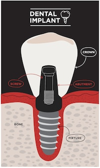 Infografica dentale vettoriale di anatomia del dente banner medico o poster con struttura del dente