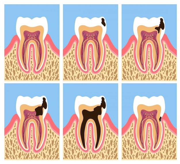 Anatomia del dente con fasi della carie dentale