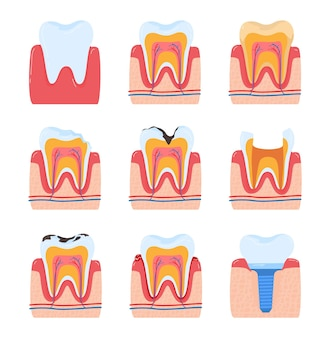 Odontoiatria dei denti denti dentali mal di denti orale