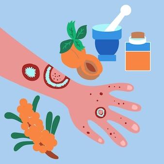 Trattamento psoriasi eczema casa olio di olivello spinoso albicocca medicato