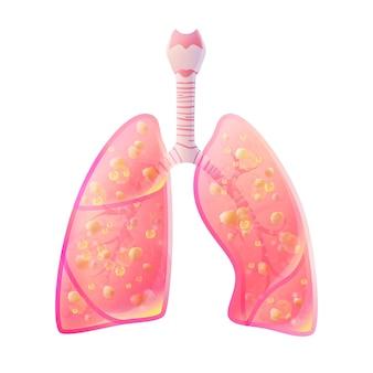Tubercolosi. illustrazione medica della siluetta di vettore dell'organo del corpo umano - polmoni con la trachea. poster per clinica, ospedale. sistema respiratorio.