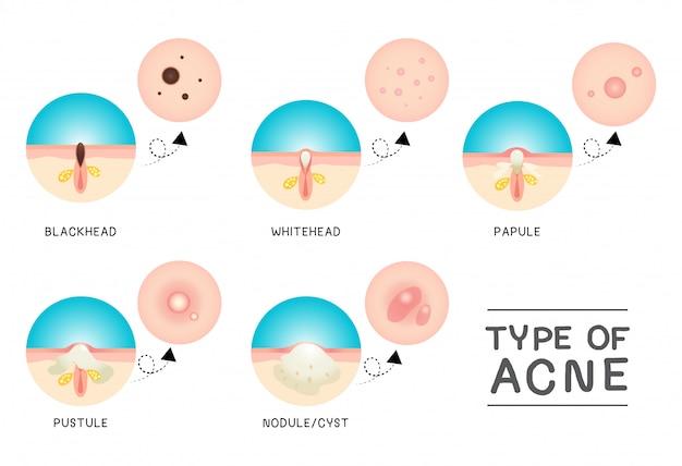 Tipo di acne