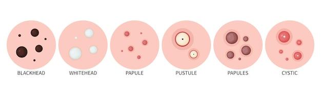 Tipi di acne acne sulla pelle e comedoni sul viso icone vettoriali di acne sulla pelle
