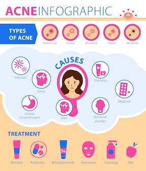 Tipi di acne cause del trattamento della malattia infografica di acnegraphic