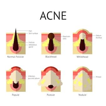 Tipi di brufoli dell'acne. pelle sana, punti bianchi e punti neri, papule e pustole in stile piatto.