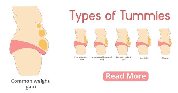 Tipi di banner di pancia femminile. chirurgia addominale o addominoplastica. post-gravidanza, pancia ormonale in menopausa, pancia da birra, pancia gonfia, pancia da aumento di peso comune.