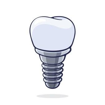 Illustrazione vettoriale. impianto dentale del dente umano. protesi del dispositivo in odontoiatria. simbolo di somatologia e igiene orale. progettazione grafica con contorno. isolato su sfondo bianco